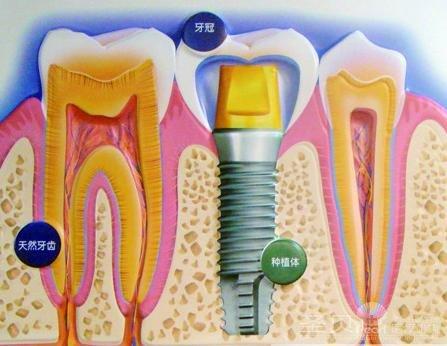 种植牙结构图