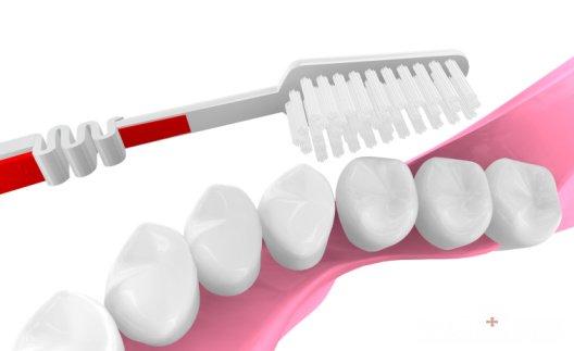 1、洁牙抛光:是指通过超声波洁牙、喷砂去除牙齿表面的色素沉积,还原牙齿的本来面目。主要针对由于药物、食物、饮料、香烟中的色素沉积于牙齿表面引起的外源性着色。洁牙抛光就相当于我们日常擦桌子扫地,抹去表面尘土,保持环境清洁。每年定期的洁牙可以清除口内卫生死角,对牙周健康的维护有重要义。但是洁牙抛光并不能改变牙齿本身的颜色,而且,为了所谓的美白而过分频繁的洁牙对牙齿本身反而是一种伤害。